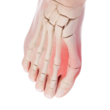 Runners-Bunions-prevention-and-treatment